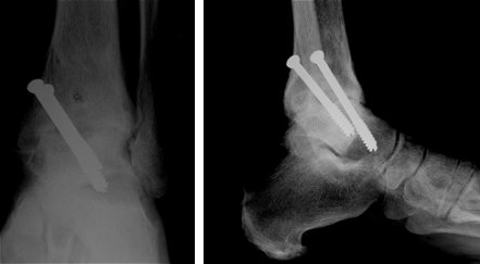 X rays of the ankle after successful fusion