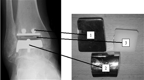 An X-ray and picture of a total ankle replacement: The ankle consists of two metal caps - one for the tibia (1), and one for the talus (2). The articulation occurs between the metal, and the plastic bearing (3).