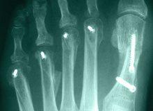 Lesser Toe Surgery