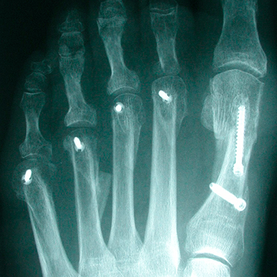 Lesser Toe Deformity X-Ray
