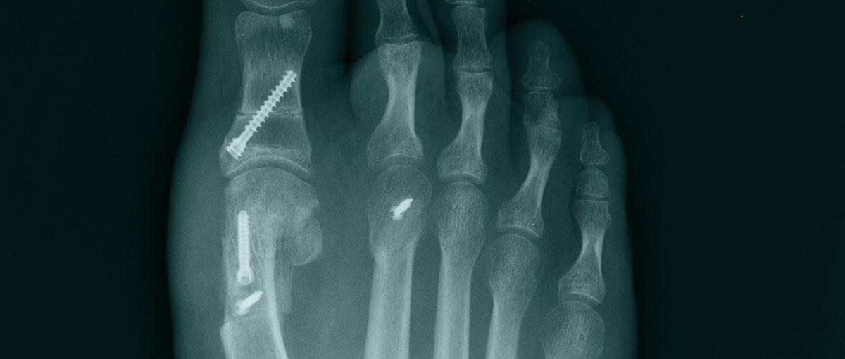Bunion Surgery – Metatarsal Osteotomy
